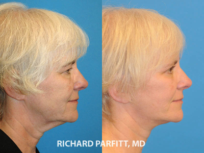 female facial rejuvenation before and after Wisconsin plastic surgery