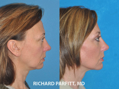 facial rejuvenation before and after Middleton WI cosmetic surgery side view