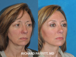 facelift before and after Middleton WI plastic surgery