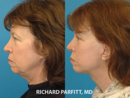 facelift forehead lift Middleton WI facial plastic surgeon