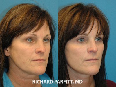 facial plastic surgery face lift surgery before and after