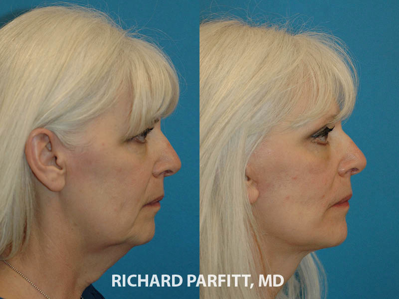 female facelift before and after cosmetic surgery procedure side view