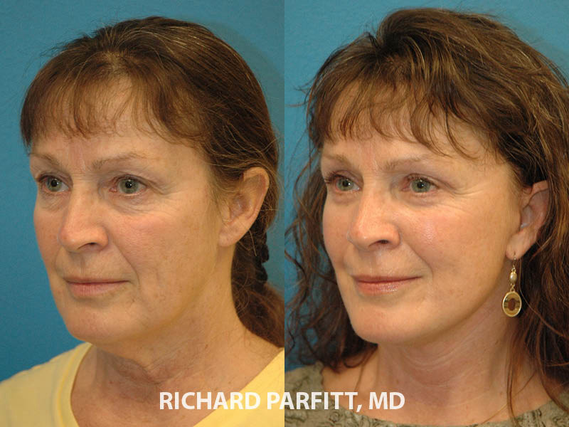 facelift WI before and after facial plastic surgery