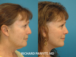 rhinoplasty facelift before and after plastic surgery