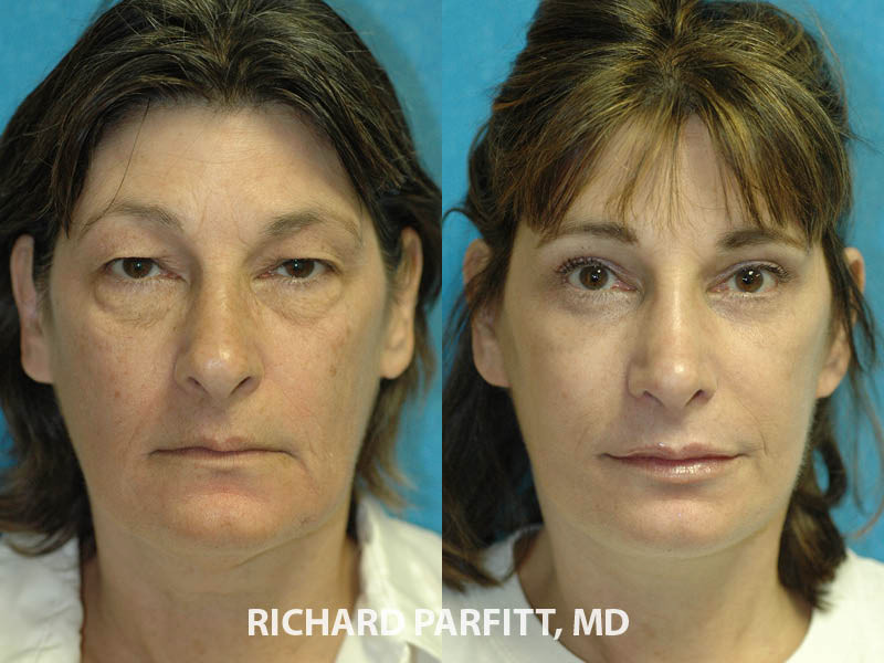 facelift before and after Chicago IL plastic surgery