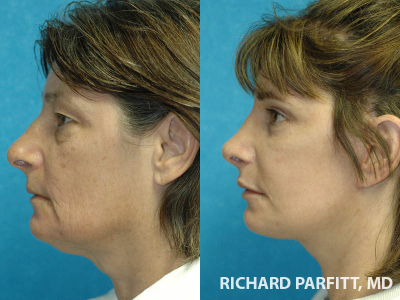 facelift brow lift surgery before and after plastic surgery Madison WI