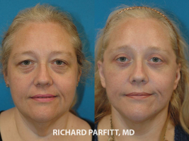 Midwest facelift expert before and after facelift cosmetic surgery