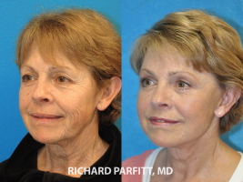 60 year old female facelift eyelid rejuvenation before and after cosmetic surgery procedure