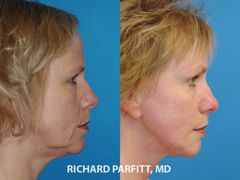 WI facelift expert before and after facelift plastic surgery