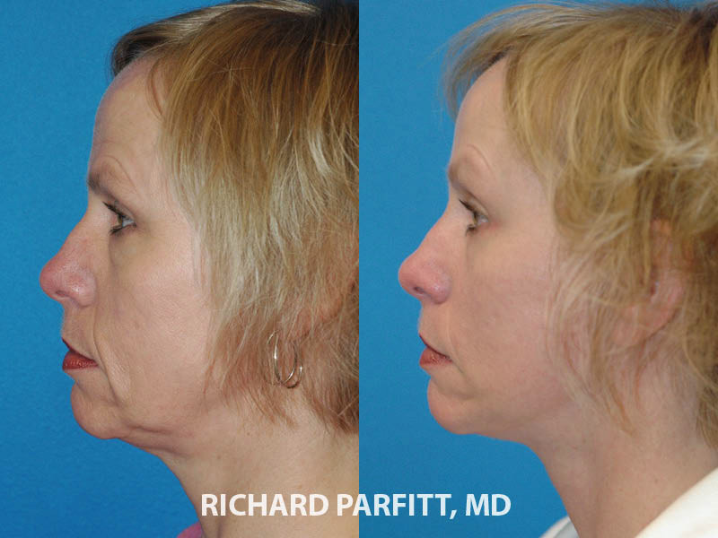 Middleton facelift expert before and after facelift plastic surgery