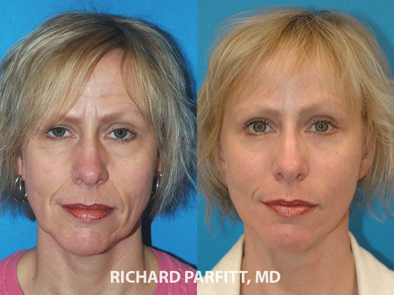 facelift brow lift before and after facial cosmetic surgery Milwaukee WI
