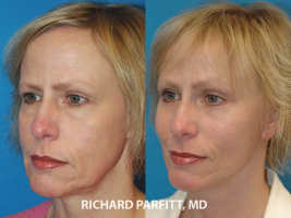 female facelift before and after Wisconsin plastic surgery