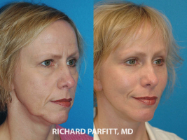 Middleton WI facial plastic surgeon facelift before and after