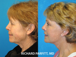 facelift before and after Appleton WI plastic surgery