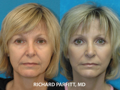 facelift eyelid surgery before and after plastic surgery Appleton