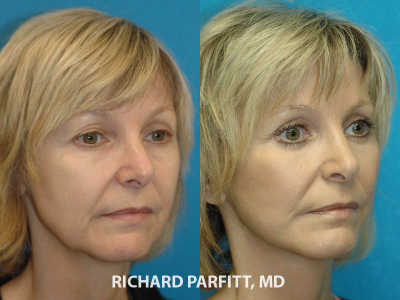 Chicago IL facial plastic surgeon facelift before and after