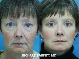 facelift before and after best plastic surgeon WI