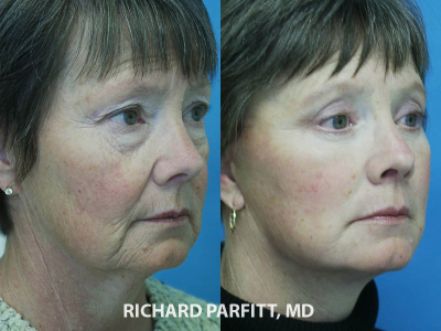 Green Bay WI facial plastic surgeon facelift before and after