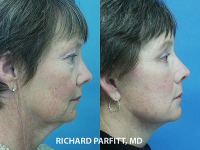 60 year old facelift before and after procedure Middleton WI