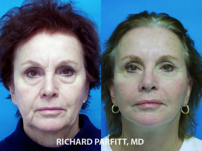 female facelift before and after cosmetic surgery procedure WI plastic surgeon