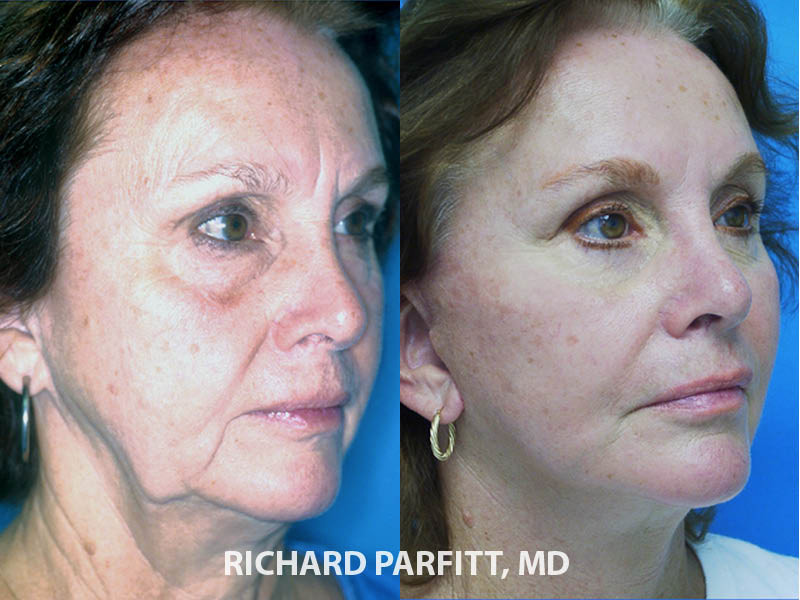 facial plastic surgery facelift procedure before and after