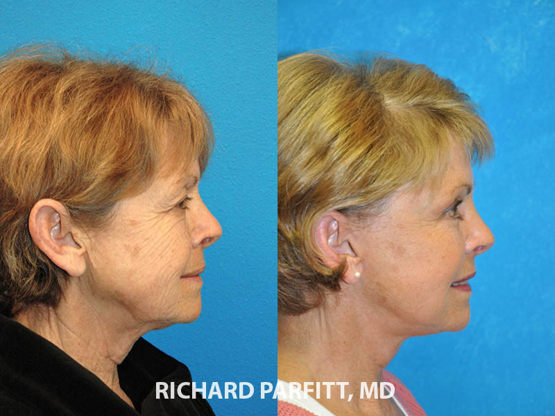 facelift 60 year old patient before and after WI side view