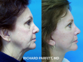 Dubuque IA facial plastic surgeon facelift before and after