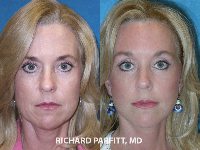 facial rejuvenation 50 year old before and after