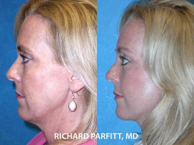 facelift Madison WI before and after plastic surgery
