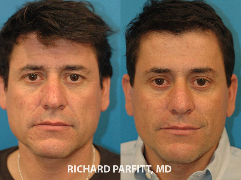 male facial plastic surgery facelift before and after front view