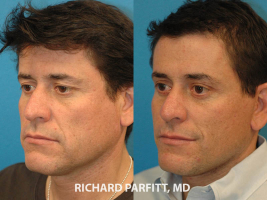 male facelift before and after plastic surgery WI cosmetic procedure