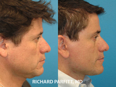 male deep plane facelift before and after surgery Madison WI