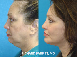 60 year old female facelift neck liposuction before and after cosmetic surgery procedure