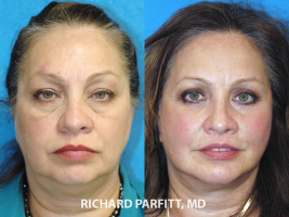 before and after facelift neck liposuction procedure female