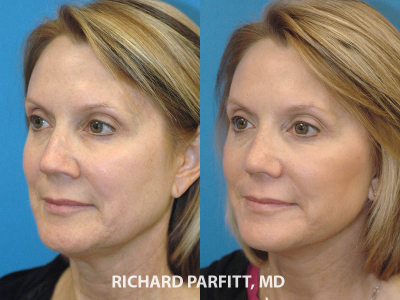 facelift rhinoplasty female before and after plastic surgery Illinois
