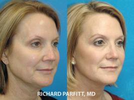 60 year old facial plastic surgery facelift nose job procedure oblique view