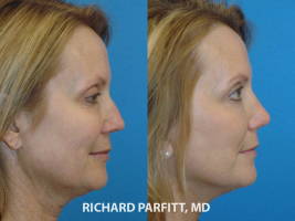 facelift nose job before and after Appleton WI facial plastic surgeon