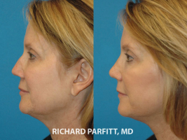 60 year old facelift rhinoplasty before and after plastic surgery Chicago IL