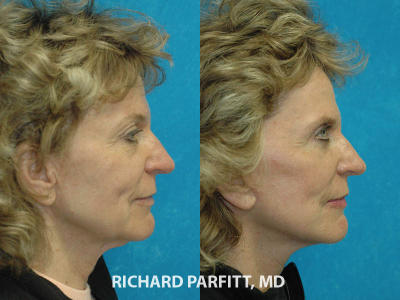 WI facelift expert before and after facelift cosmetic surgery