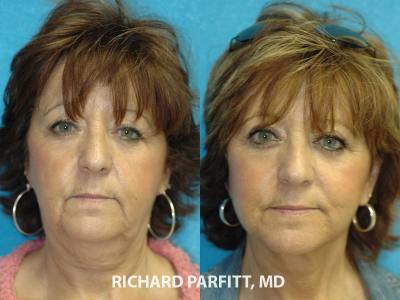 Appleton facelift expert before and after facelift plastic surgery