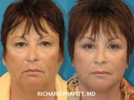 Green Bay facelift expert before and after facelift plastic surgery