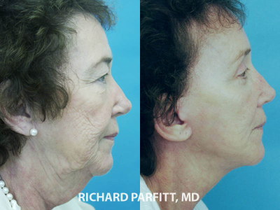 facelift neck lift before and after facial cosmetic surgery Madison WI