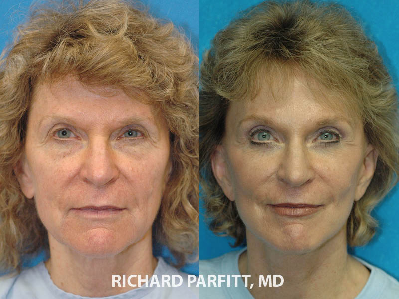 facial plastic surgeon before and after face lift surgery WI