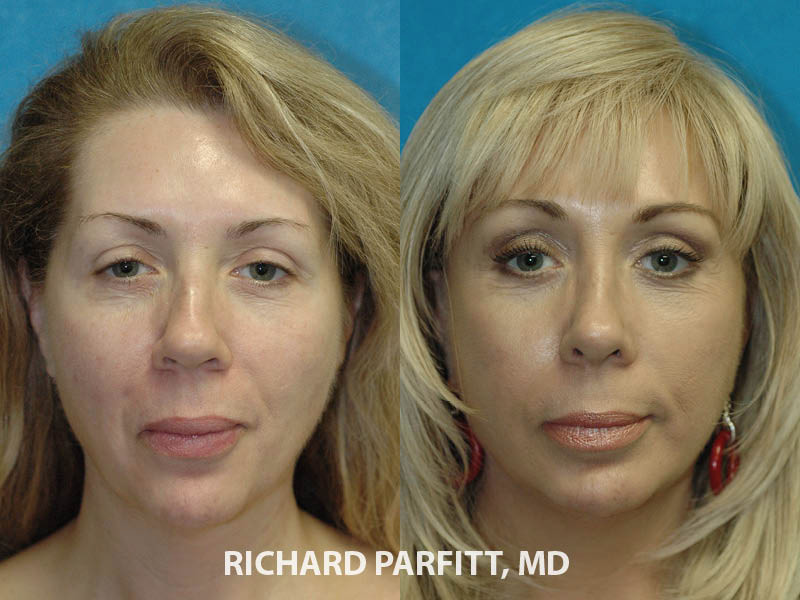 facial plastic surgeon before and after facelift rhinoplasty surgery Appleton WI