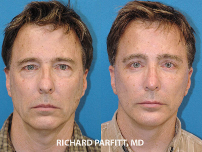rhinoplasty facelift male plastic surgery before and after front view