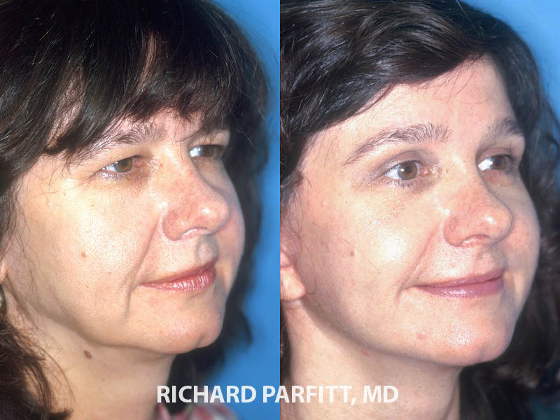 facelift surgery before and after female facial rejuvenation WI