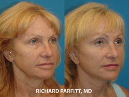 60 year old facelift before and after plastic surgery Madison WI