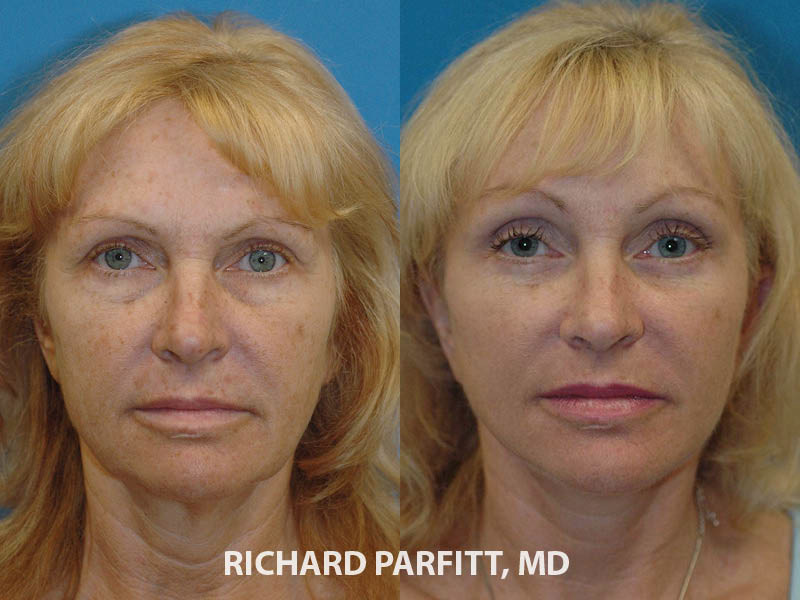 female facelift before and after cosmetic surgery procedure Midwest plastic surgeon
