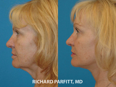neck lift facelift before and after cosmetic surgery Appleton WI
