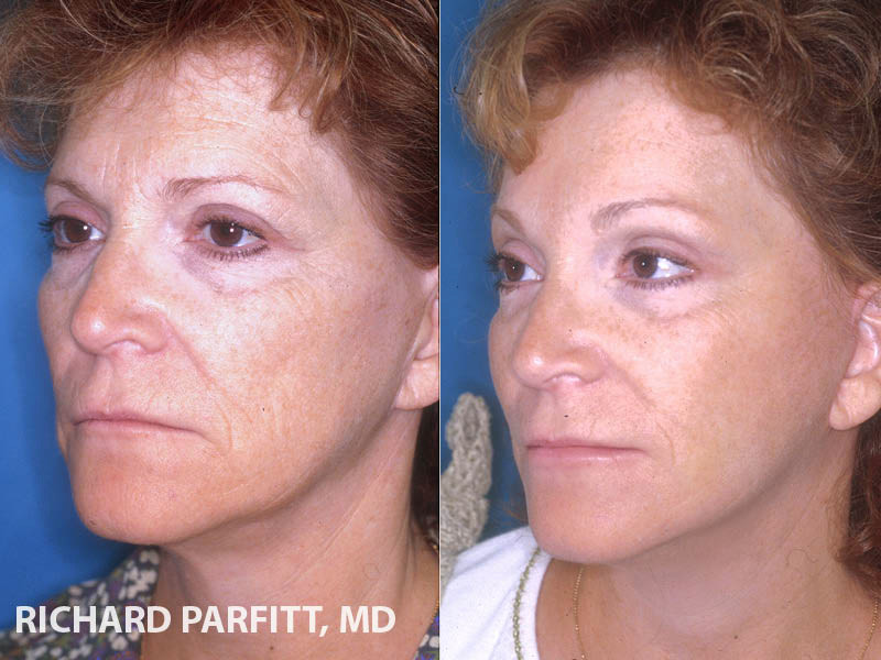 neck lift facelift before and after cosmetic surgery Green Bay WI